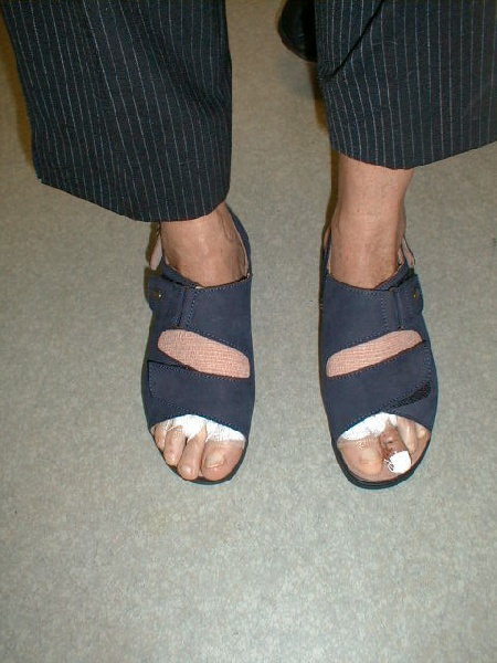 docteur eric toullec chirurgien orthop diste sur bordeaux cheville pied. Black Bedroom Furniture Sets. Home Design Ideas