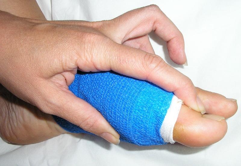 Docteur eric toullec chirurgien orthop diste sur bordeaux for Douleur interieur pied gauche