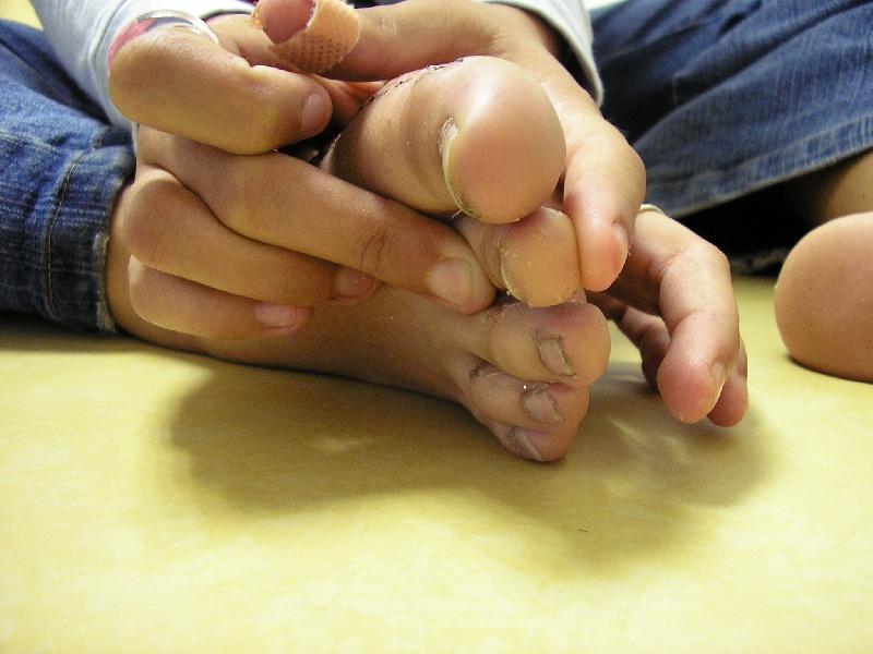 Douleur sur le cote exterieur du pied for Douleur genou exterieur